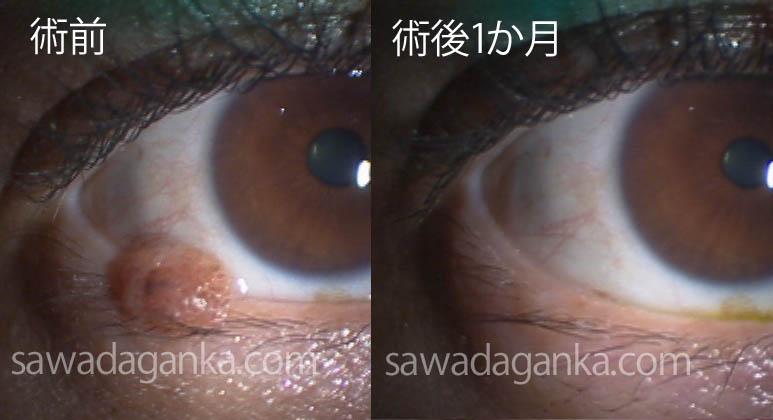 目 の きわ 白い でき もの